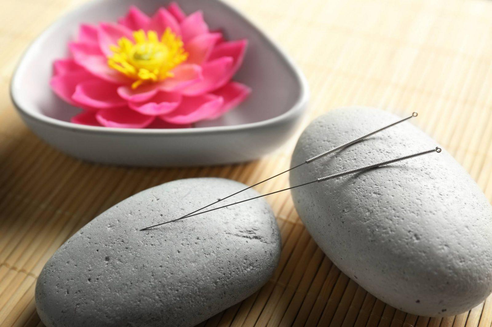 Medycyna chińska - zdrowie to równowaga