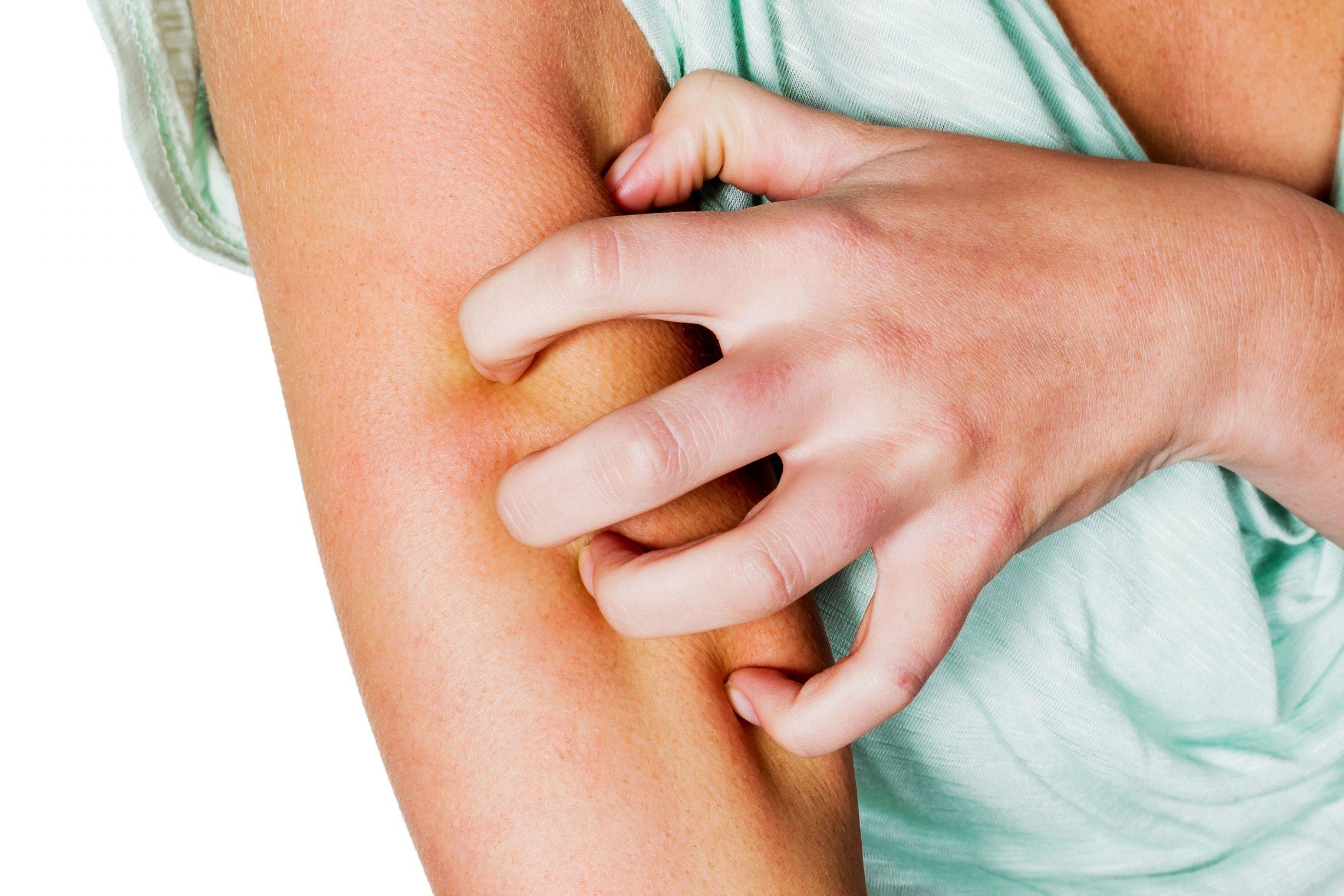 Cukrzyca – z czego wynikają problemy skórne?
