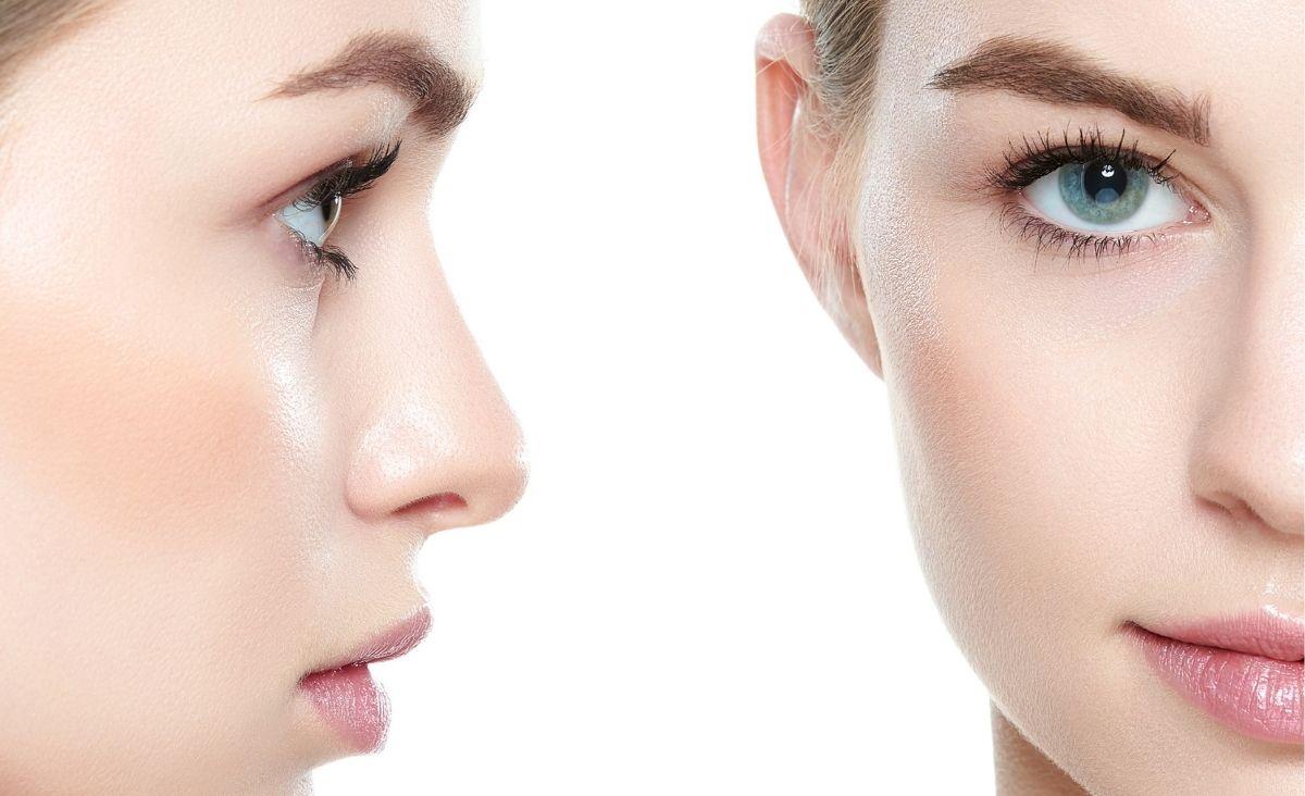 Przebarwienia skóry - teraz jest najlepszy czas, by je usunąć
