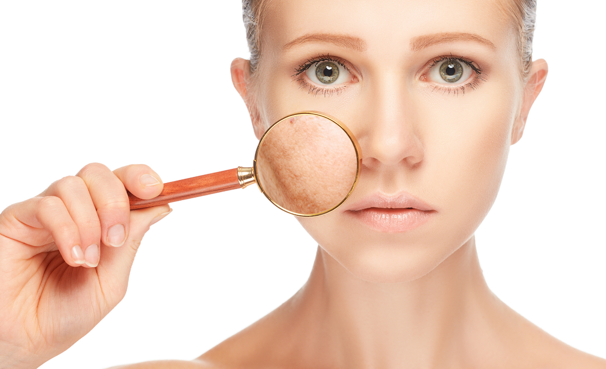 Makijaż cery z niedoskonałościami