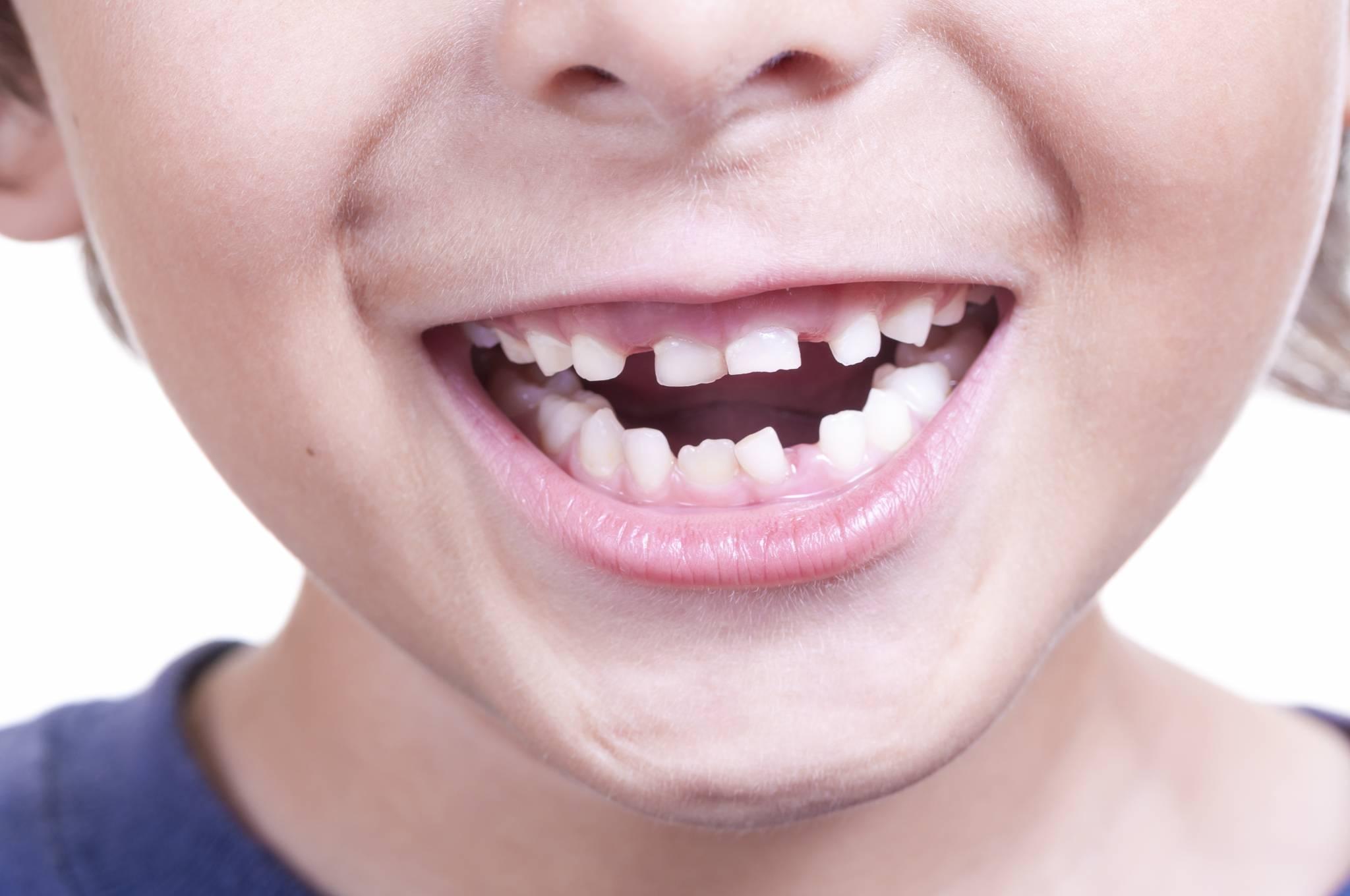Dlaczego należy dbać o zęby mleczne naszych dzieci?