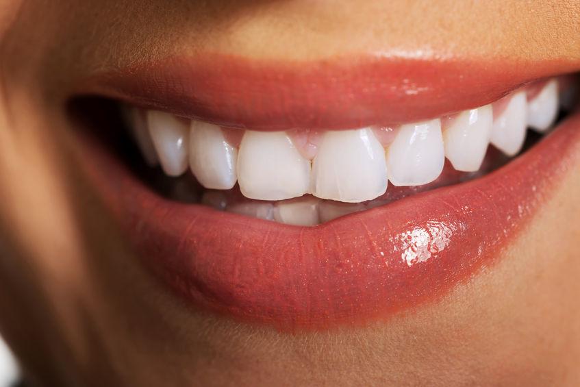 Białe zęby - poradnik