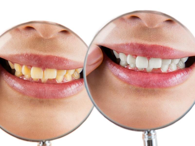 Osad na zębach - jak się go pozbyć?