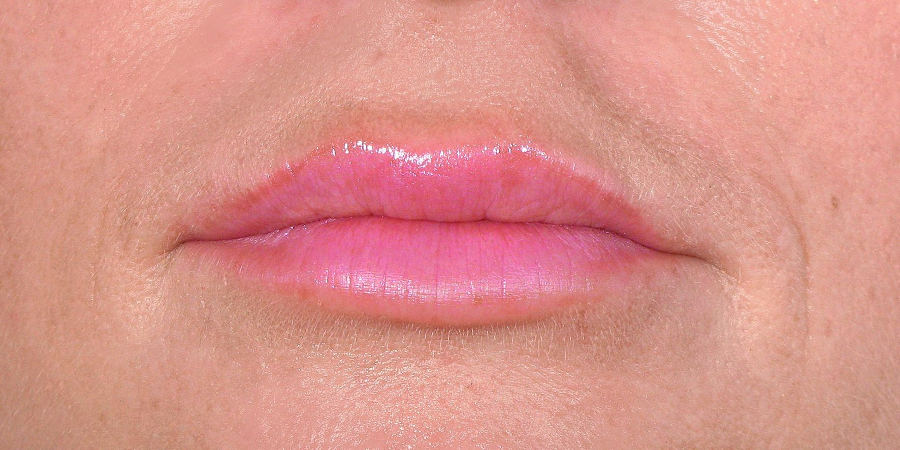Mia_BEL_Lips_After(1)