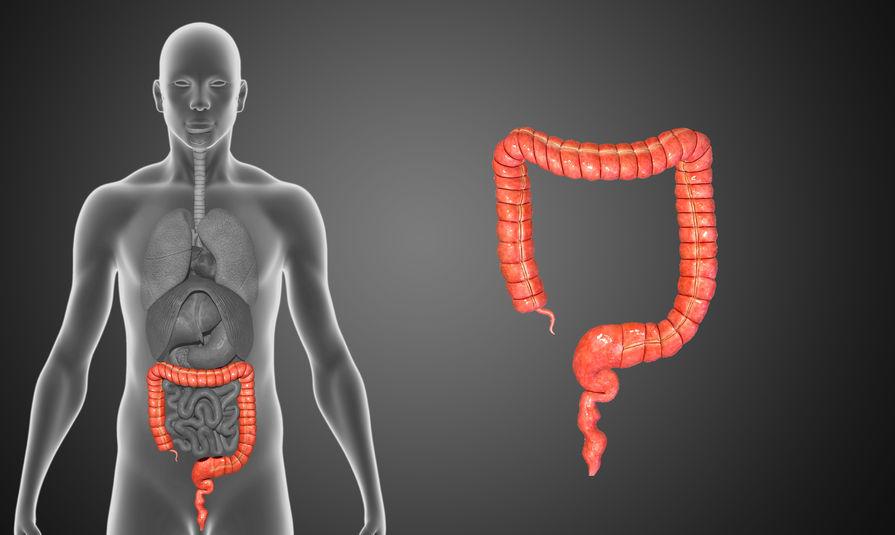 Dieta a nowotwór jelita grubego