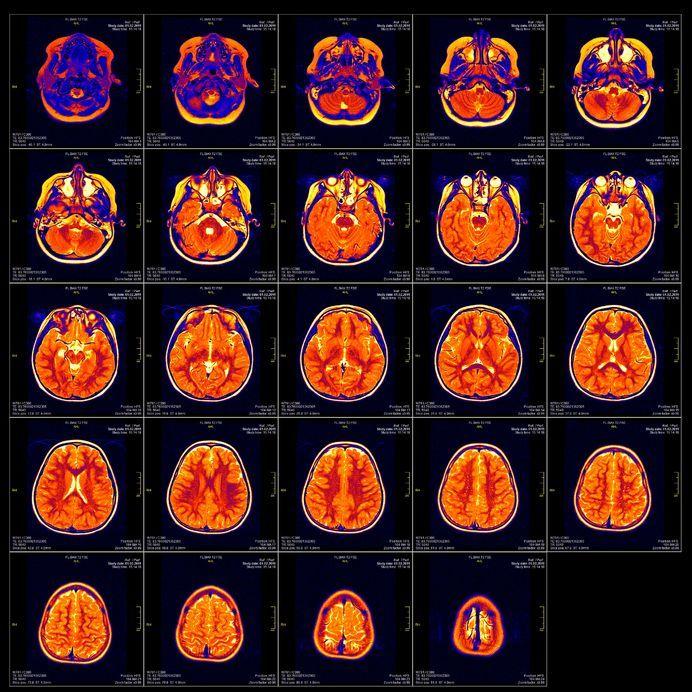 Mózg do wymiany