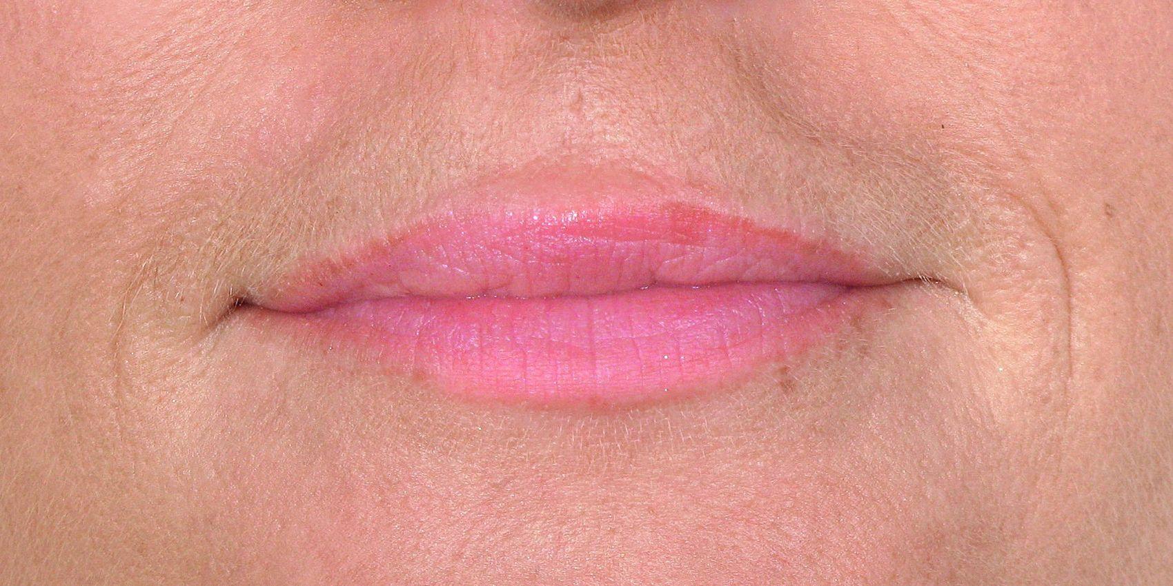 Mia_BEL_Lips_Before
