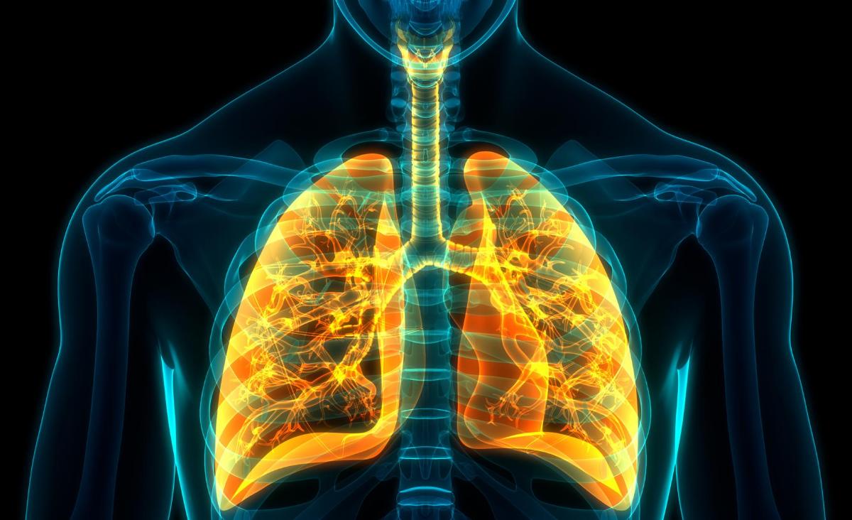 Rak płuc – cichy zabójca